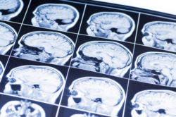 symptoms of a brain injury
